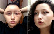 बालो को सुंदर बनाने के लिए इस लड़की ने किया कुछ ऐसा , दोगुना हो गया सिर का साइज़ !