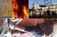 पालघर जिला : तारापुर MIDC मे केमकल कंपनी में आग लगने से 6 कामगार घायल